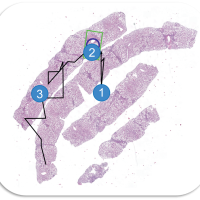 Visualization of Histopathological Decision Making Using a Roadbook Metaphor